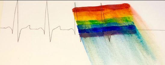 5 Jahre Orlando – Schwule Tote stören und stören immernoch
